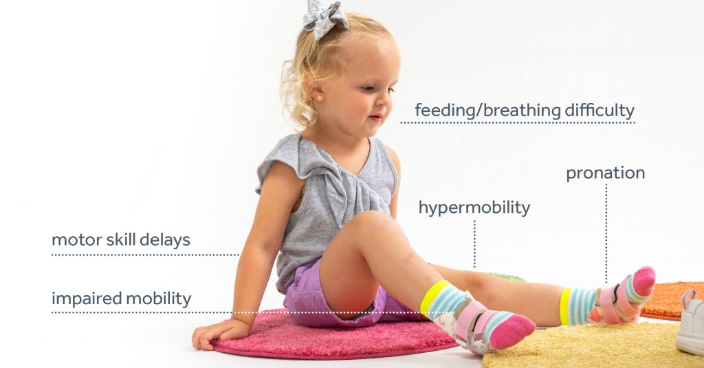 Hypotonia Symptoms
