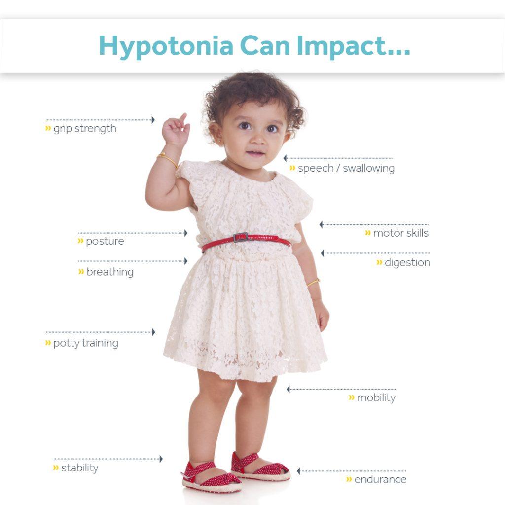 symptoms of hypotonia