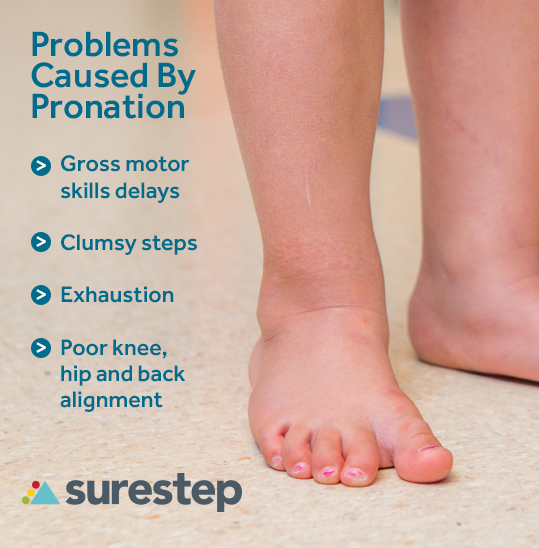 List of problems caused by pronation