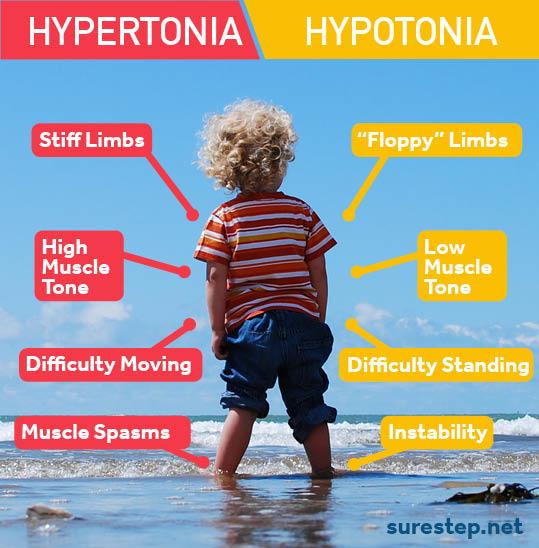 hypertonia versus hypotonia