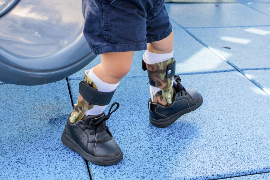 Surestep orthotics for cerebral palsy