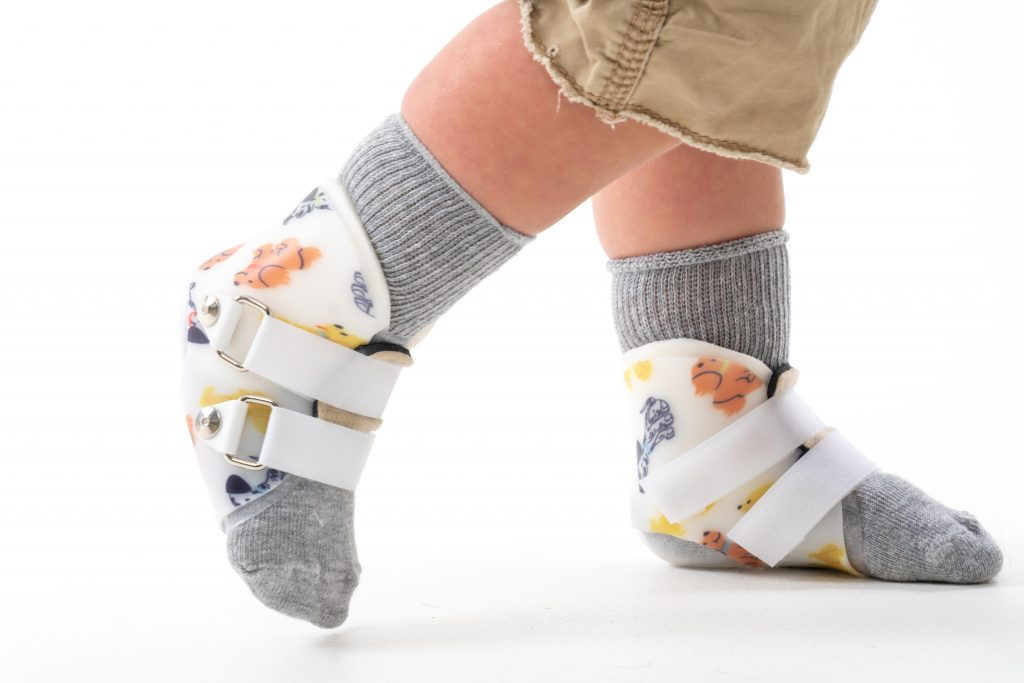 Surestep SMOs treat hypotonia in toddlers and kids