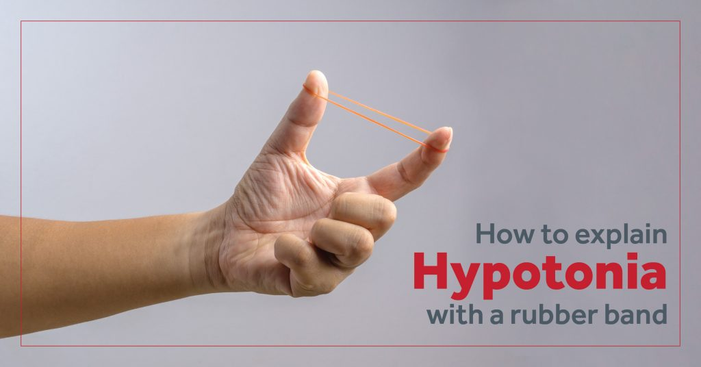 How to explain hypotonia with a rubber band