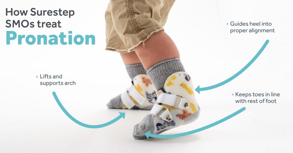 How Surestep SMO orthotics treat pronation