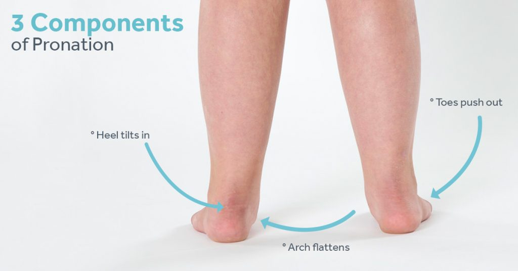 The three components of pronation that SMO orthotics address