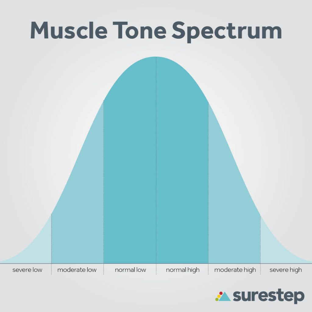 Hypertonia and hypotonia muscle tone spectrum