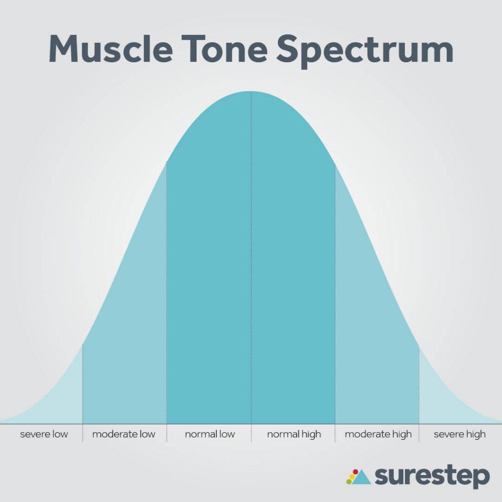A bell curve demonstrating hypertonia vs hypotonia