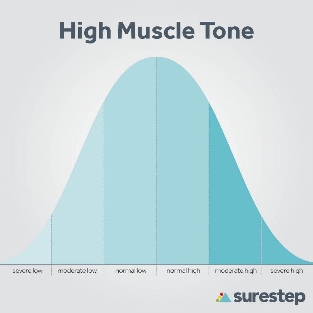 Hypertonia muscle tone bell curve
