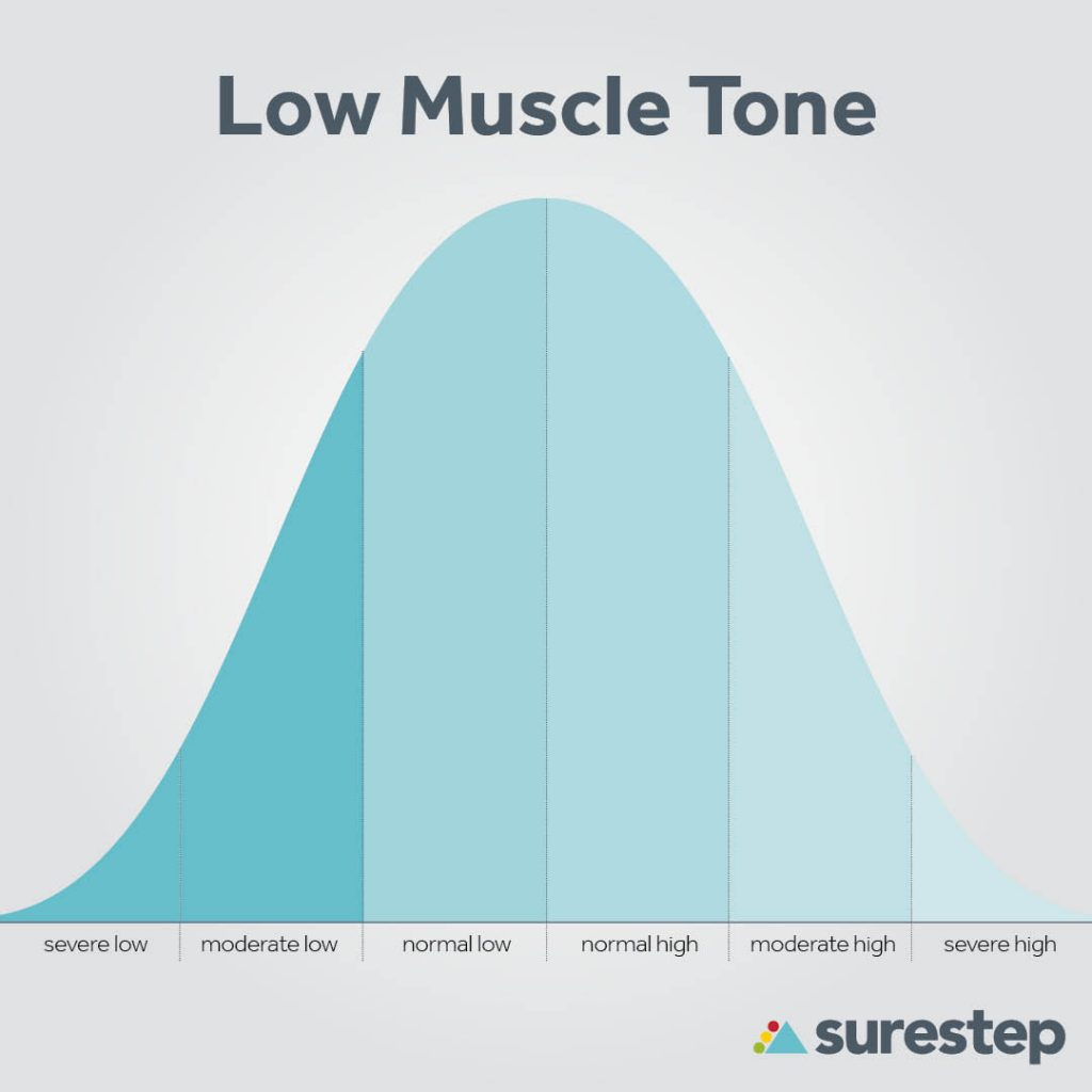 Hypotonia muscle tone Bell Curve