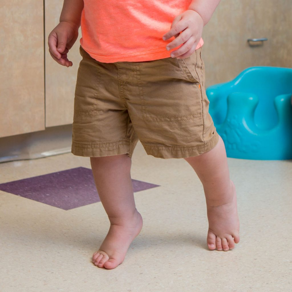 Example of Toe Walking Toddler