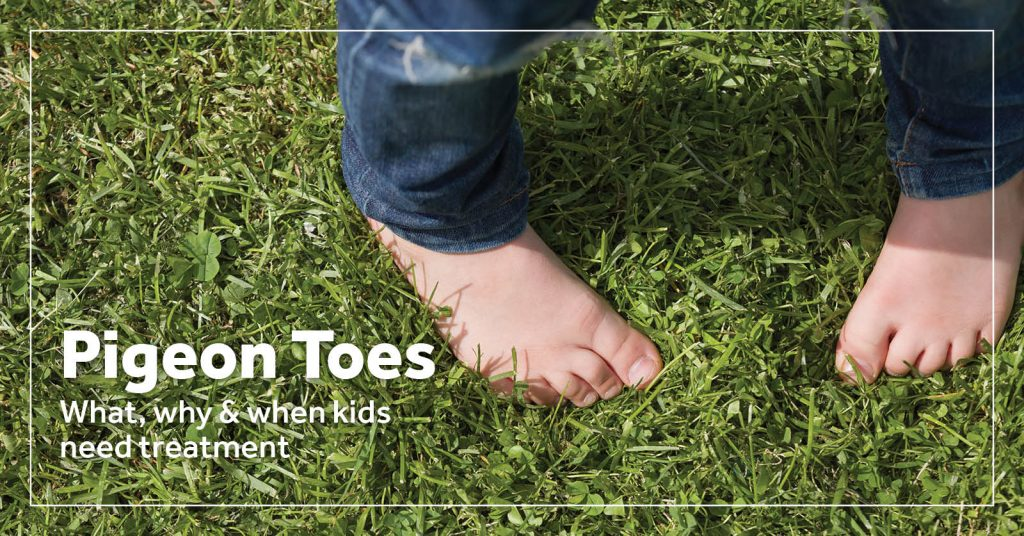 Pigeon Toes Treatment For Kids