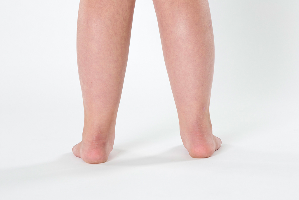 Pediatric Pronation Flat Feet
